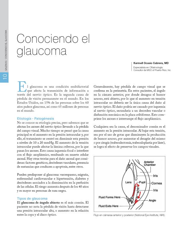 Conociendo el glaucoma