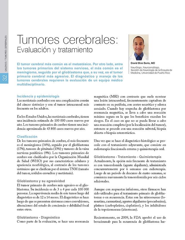 Tumores cerebrales:  Evaluación y tratamiento