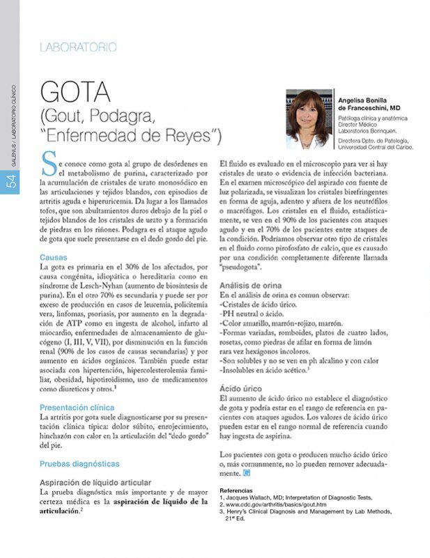 "GOTA (Gout, Podagra,  ""Enfermedad de Reyes"")"