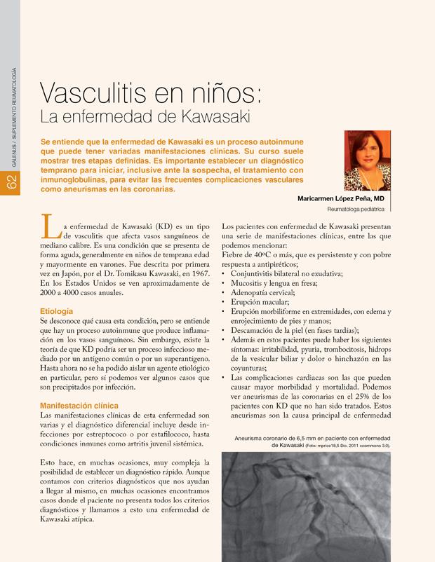 Vasculitis en niños: La enfermedad de Kawasaki