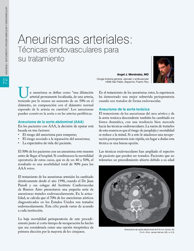 Aneurismas arteriales: Técnicas endovasculares para su tratamiento