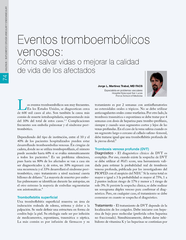 Eventos tromboembólicos venosos: Cómo salvar vidas o mejorar la calidad de vida de los afectados