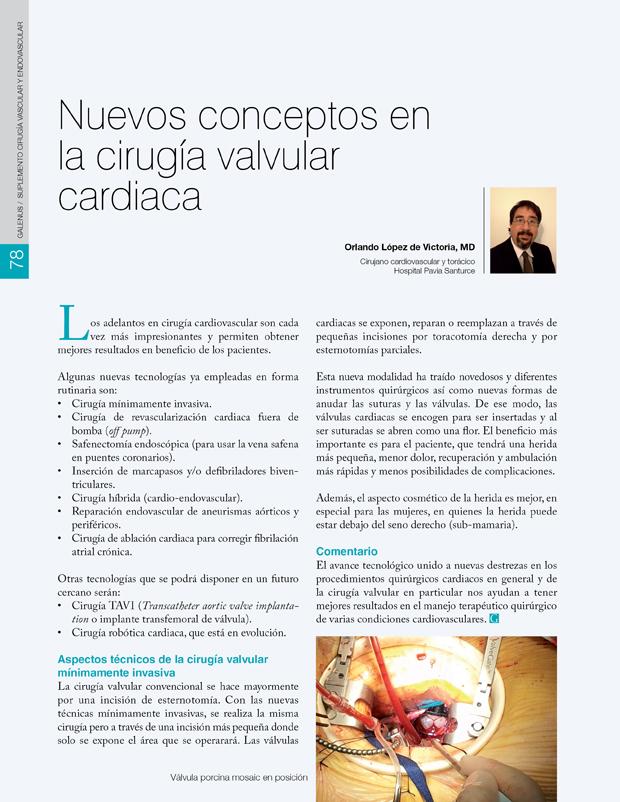 Nuevos conceptos en la cirugía valvular cardiaca