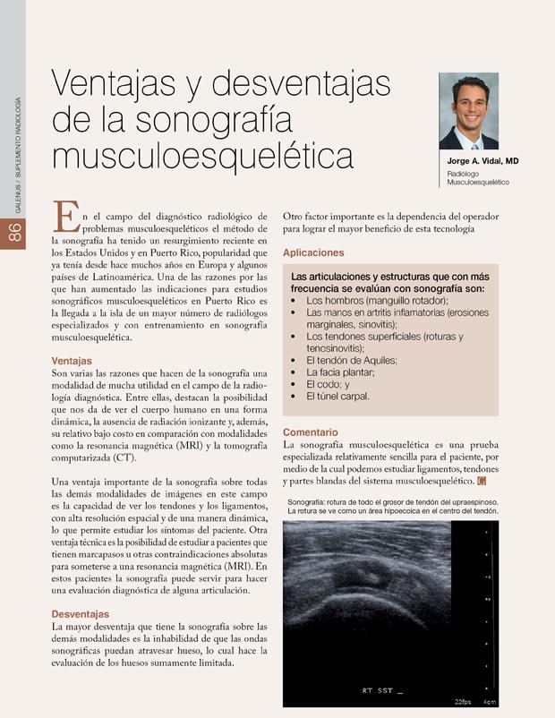 Ventajas y desventajas de la sonografía musculoesquelética