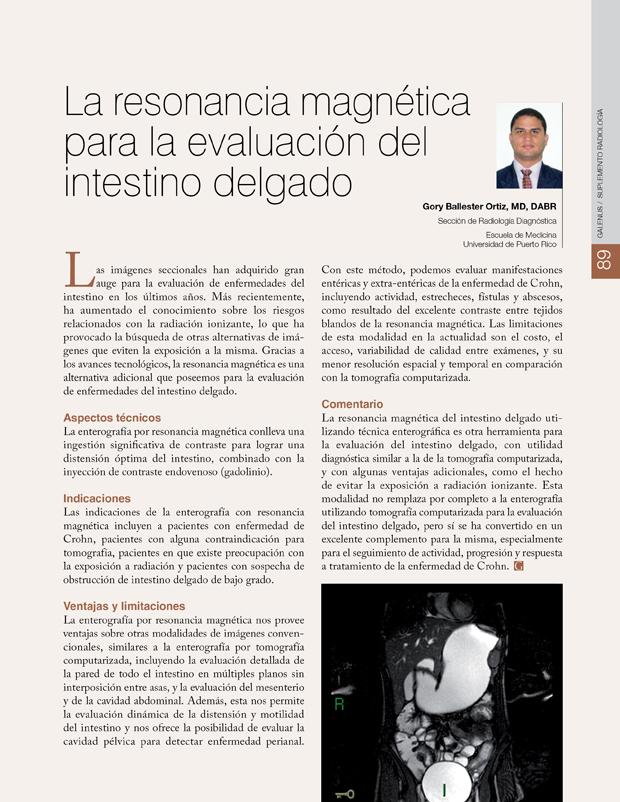 La resonancia magnética para la evaluación del intestino delgado