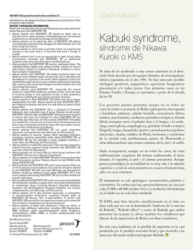 Kabuki syndrome, síndrome de Nikawa Kuroki o KMS