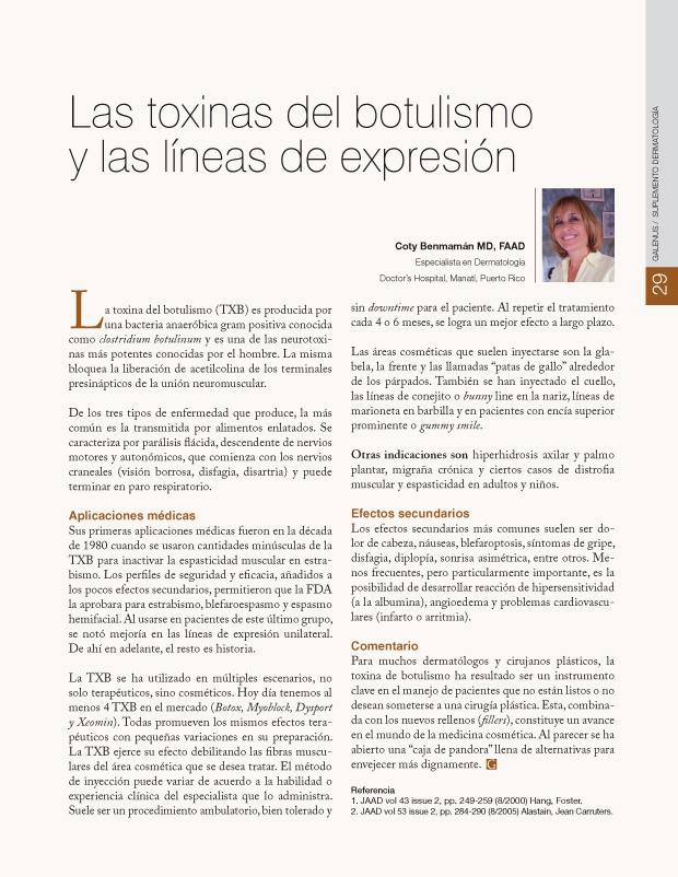 Las toxinas del botulismo y las líneas de expresión