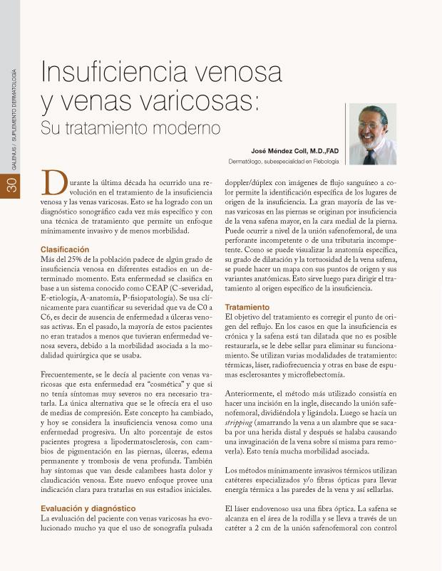 Insuficiencia venosa y venas varicosas