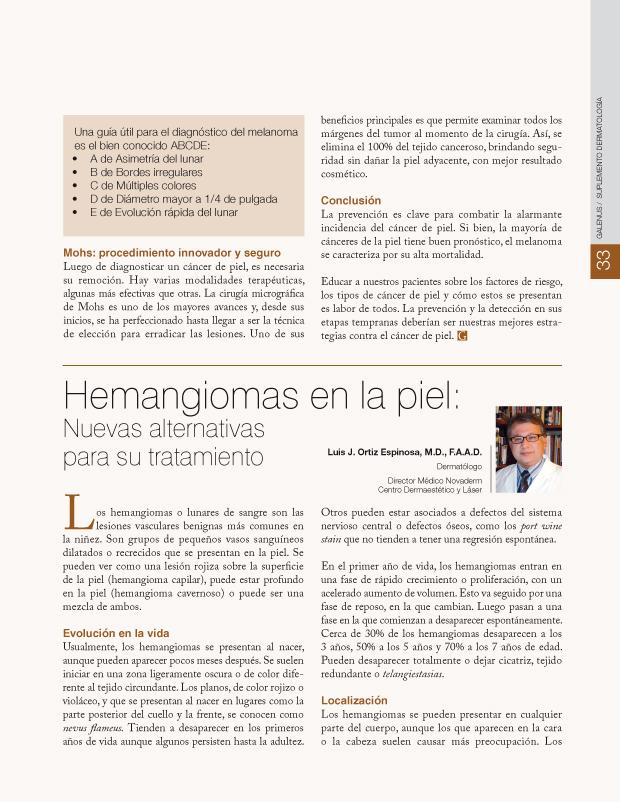 Hemangiomas en la piel
