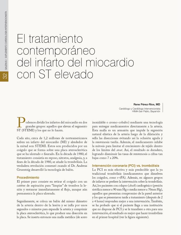 El tratamiento contemporáneo del infarto del miocardio con ST elevado
