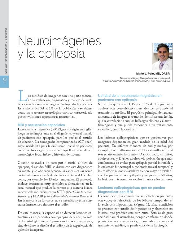 Neuroimágenes y la epilepsia