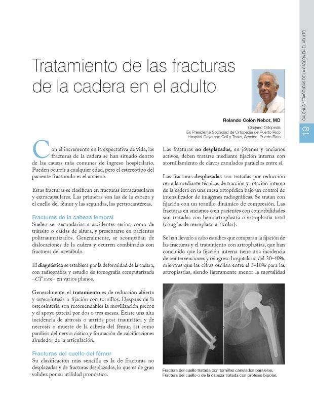 Tratamiento de las fracturas de la cadera en el adulto