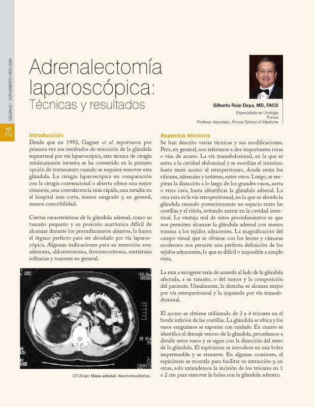 Adrenalectomía laparoscópica: