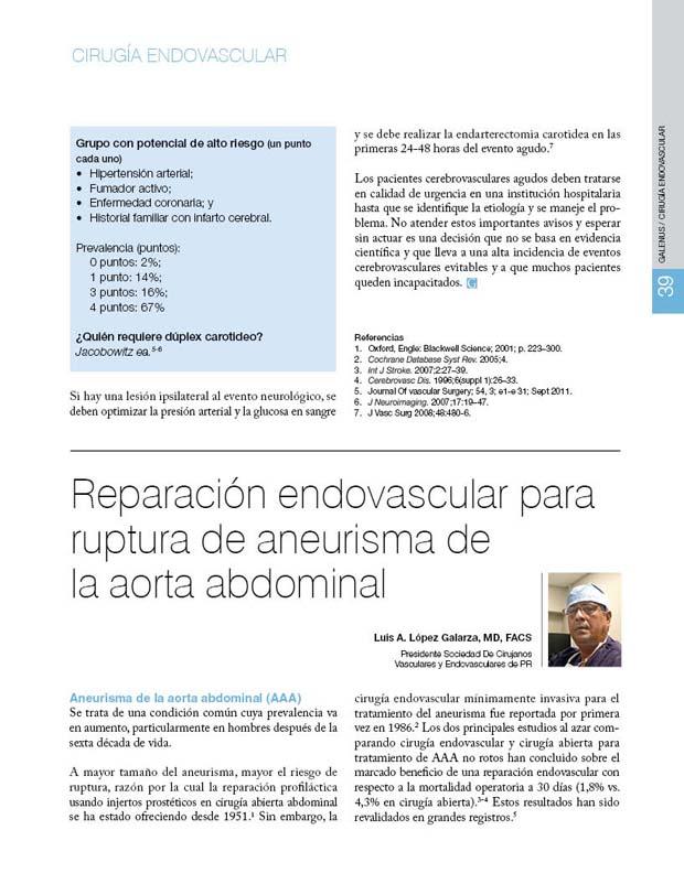 Reparación endovascular para ruptura de aneurisma de  la aorta abdominal