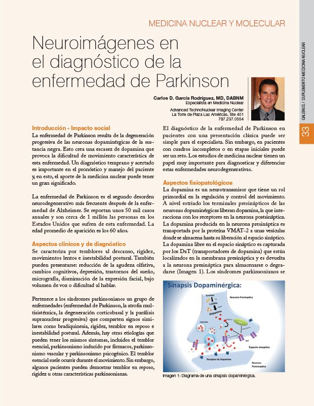 Neuroimágenes en el diagnóstico de la enfermedad de Parkinson