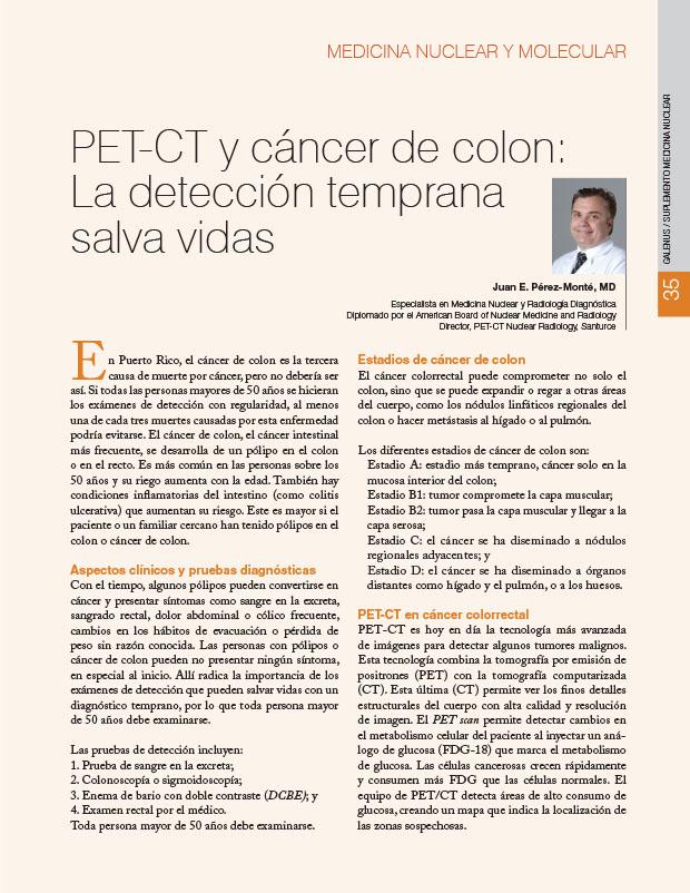 PET-CT y cáncer de colon: La detección temprana salva vidas