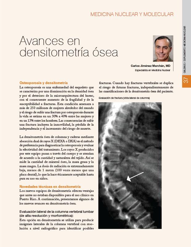 Avances en densitometría ósea