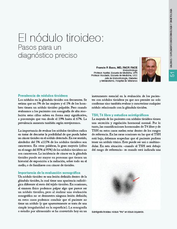 El nódulo tiroideo: Pasos para un diagnóstico preciso