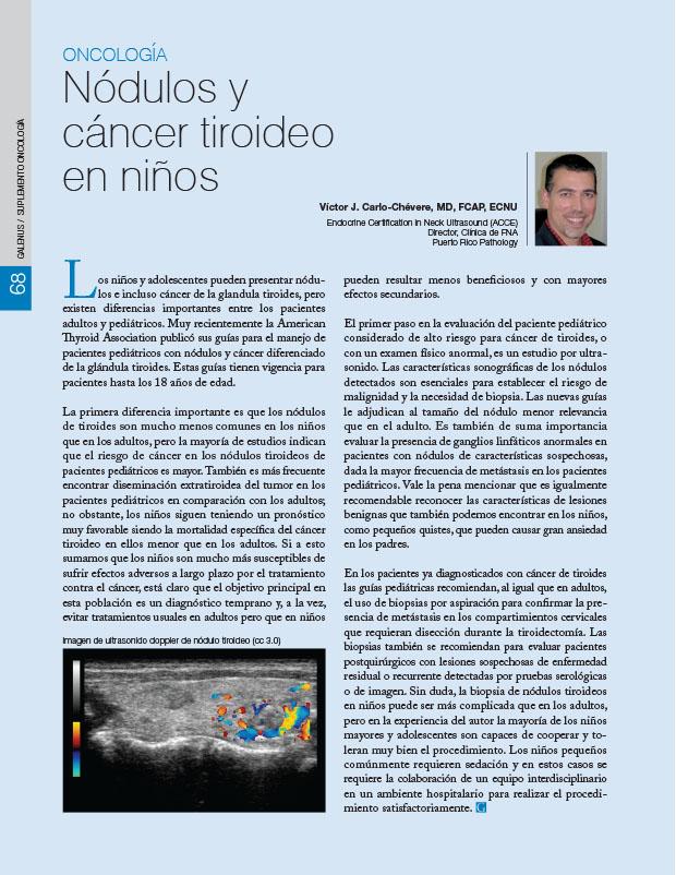 Nódulos y cáncer tiroideo en niños