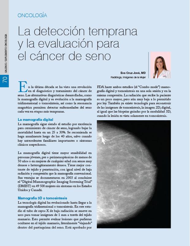 La detección temprana y la evaluación para el cáncer de seno
