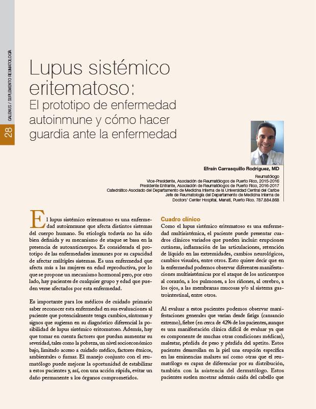 Lupus sistémico eritematoso: El prototipo de enfermedad autoinmune y cómo hacer guardia ante la enfermedad