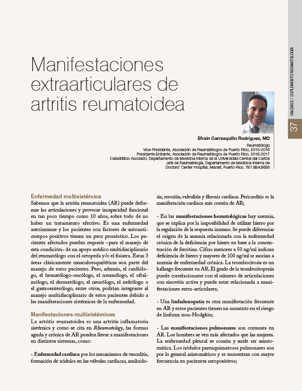 Manifestaciones extraarticulares de artritis reumatoidea