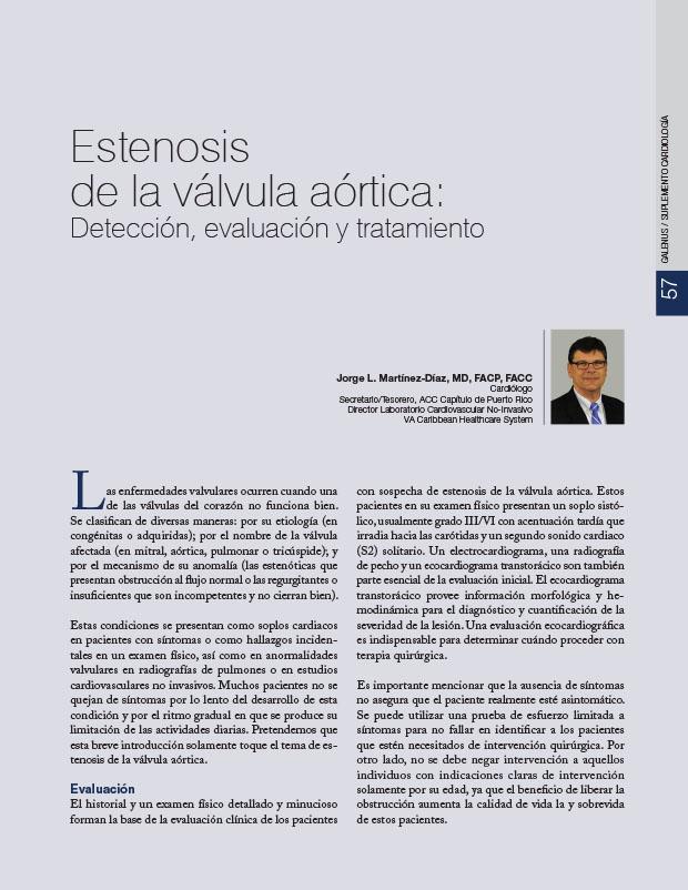 Estenosis de la válvula aórtica: Detección, evaluación y tratamiento