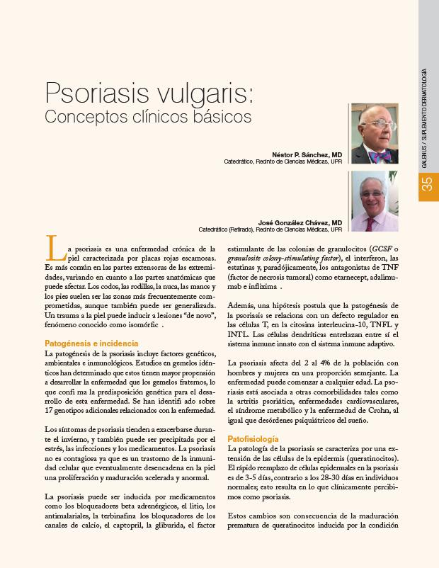 Psoriasis vulgaris: Conceptos clínicos básicos