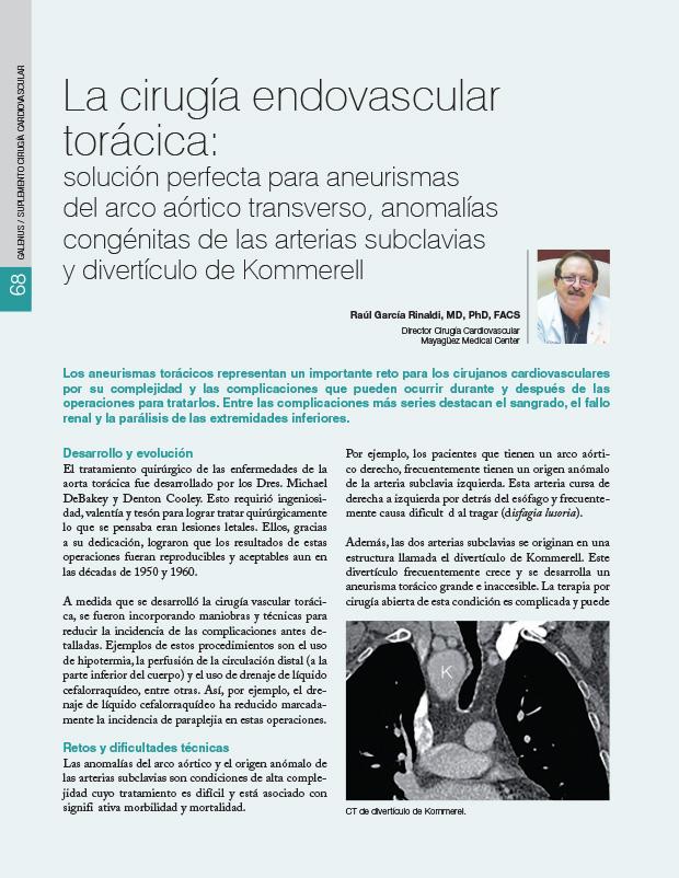 La cirugía endovascular torácica: solución perfecta para aneurismas del arco aórtico transverso, anomalías congénitas de las arterias subclavias y divertículo de Kommerell