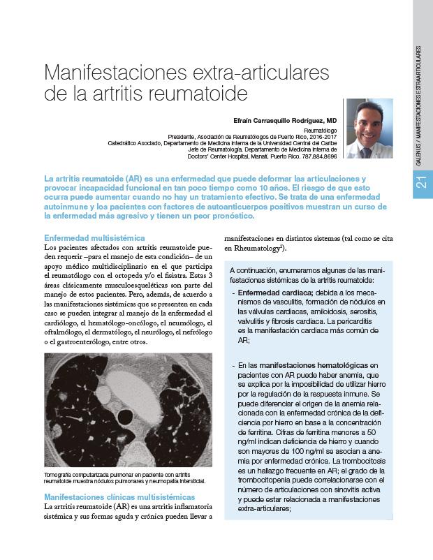 Manifestaciones extra-articulares de la artritis reumatoide