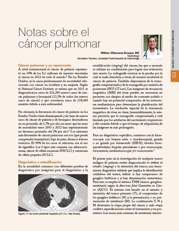 Notas sobre el cáncer pulmonar