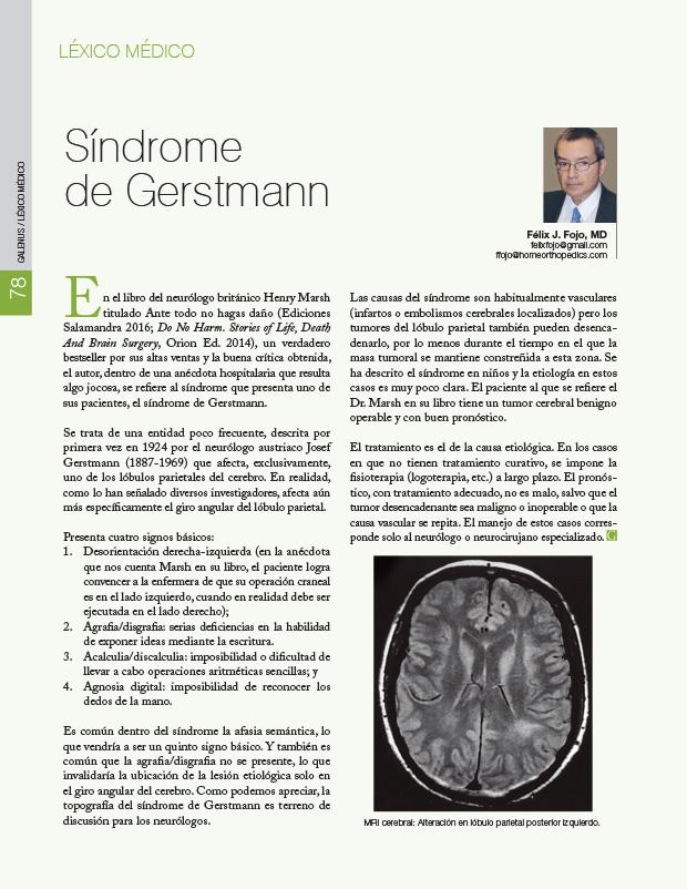 Léxico médico: Síndrome de Gerstmann