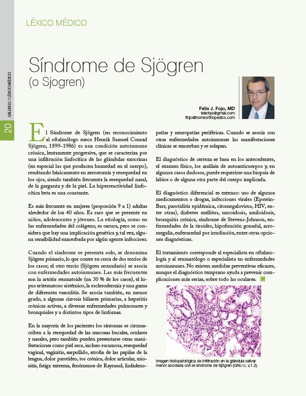 Síndrome de Sjögren (o Sjogren)