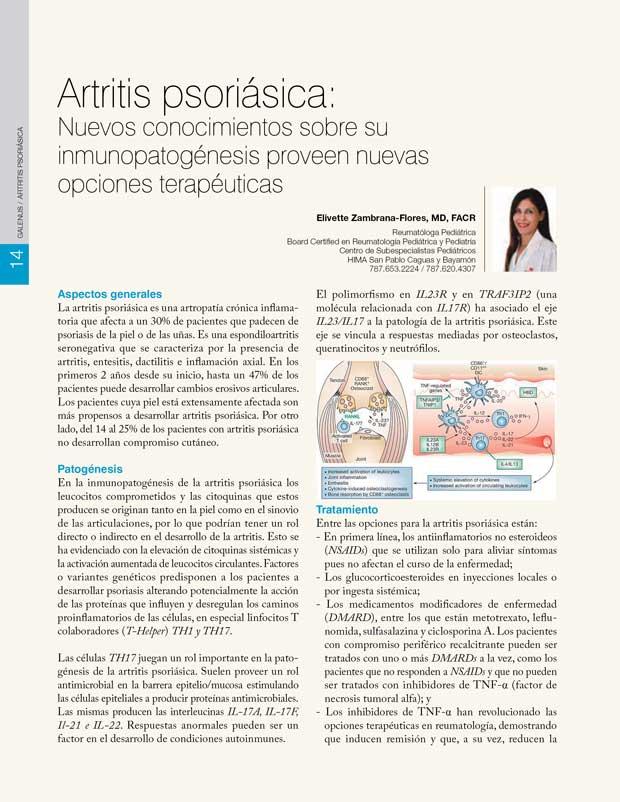 Artritis psoriásica: Nuevos conocimientos sobre su inmunopatogénesis proveen nuevas opciones terapéuticas