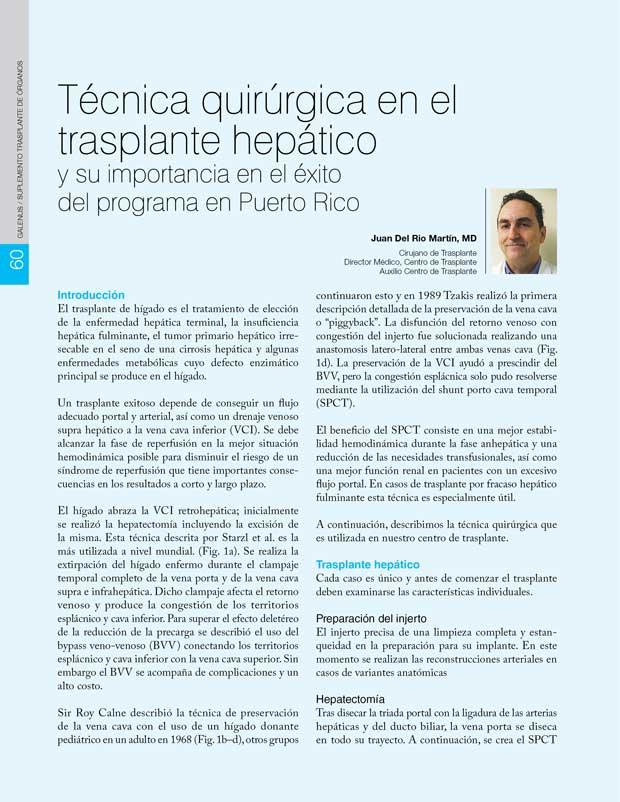Técnica quirúrgica en el trasplante hepático