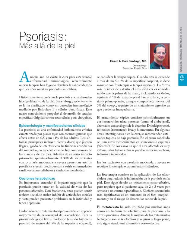 Psoriasis: Más allá de la piel