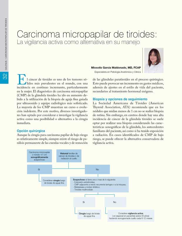 Carcinoma micropapilar de tiroides