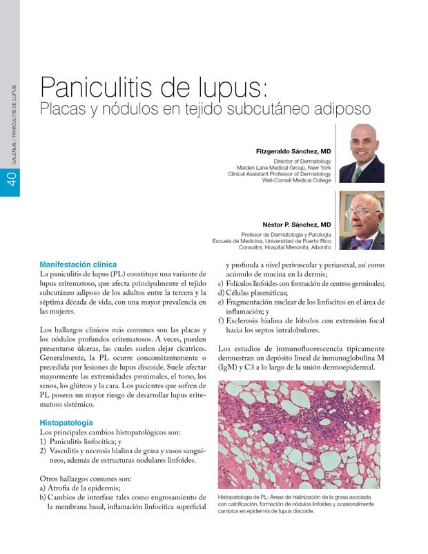 Paniculitis de lupus