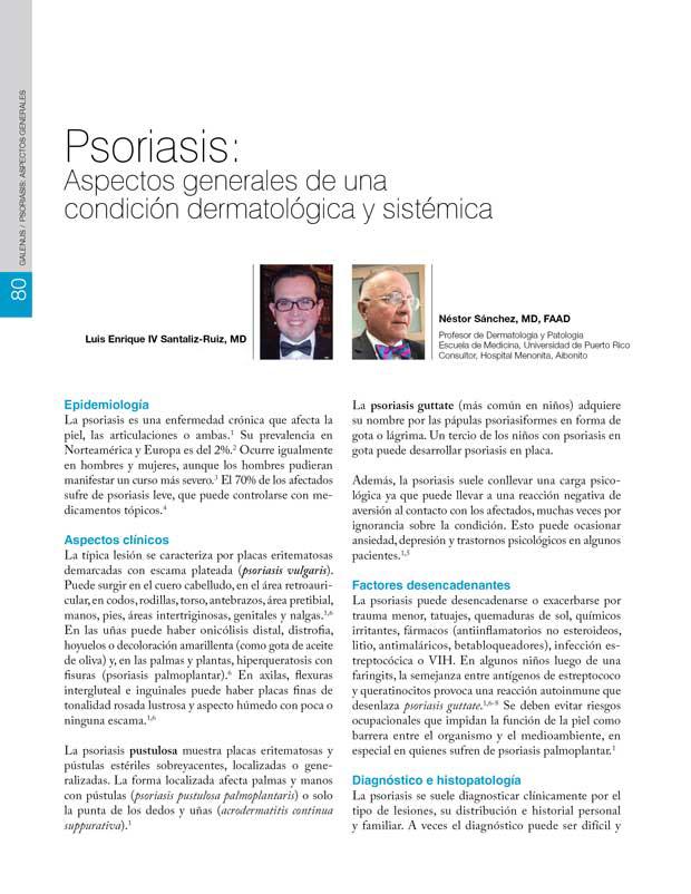 Psoriasis: Aspectos generales