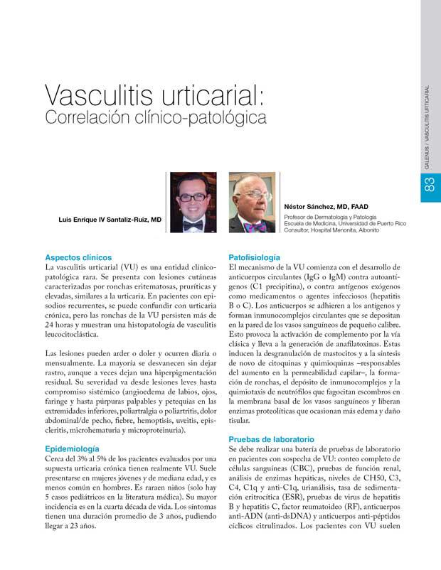 Vasculitis urticarial