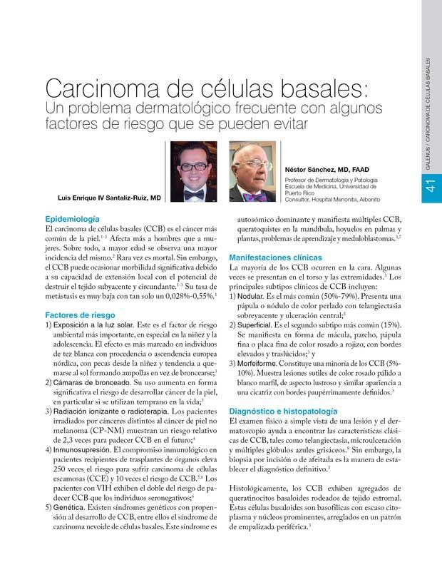 Carcinoma de células basales