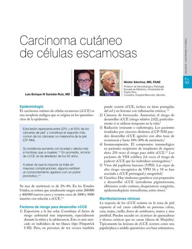 Carcinoma cutáneo  de células escamosas