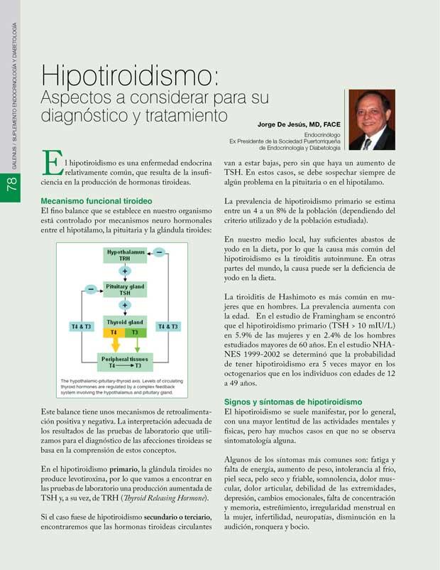 Hipotiroidismo: Aspectos a considerar