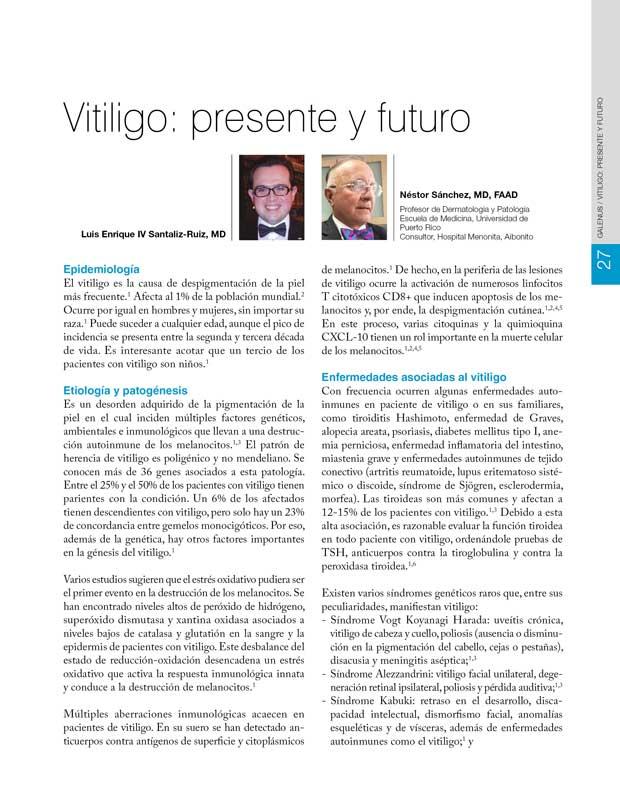 Vitiligo: presente y futuro