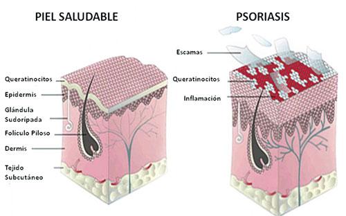El tratamiento de la psoriasis en sestroretske